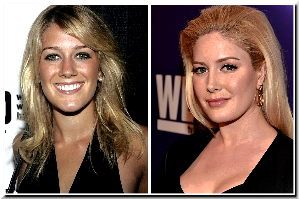 Heidi Montag Plastic Surgery — Scars after Ten Plastic Surgeries