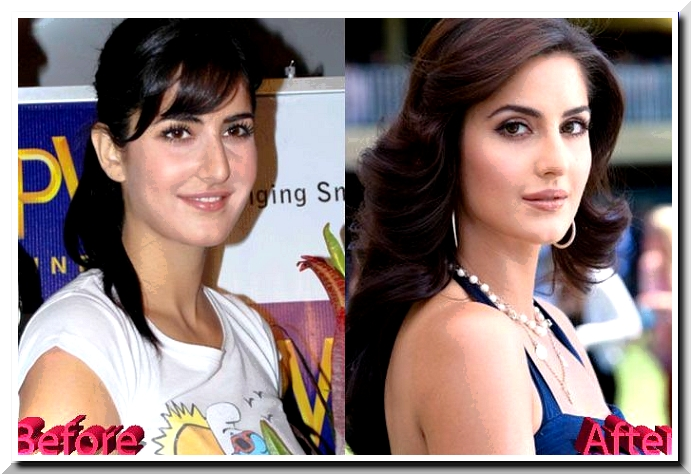Katrina Kaif Accused of having some Plastic Surgery Done